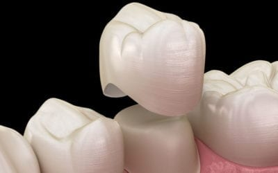 Benefits of Cerec Same Day Crowns
